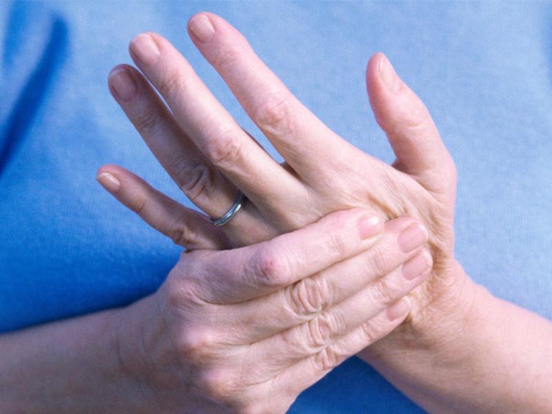 Ревматоидный артрит — причины, симптомы и лечение
