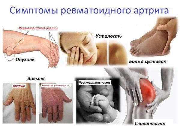 Как можно лечить подагру в домашних условиях